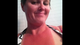 Photos: OUCH! Painful, yet hilarious sunburns… - (18/25)
