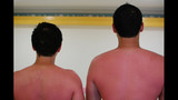 Photos: OUCH! Painful, yet hilarious sunburns… - (14/25)