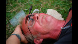 Photos: OUCH! Painful, yet hilarious sunburns… - (8/25)