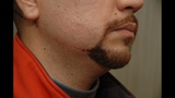 Evidence Photos: Bloodied George Zimmerman,… - (22/25)