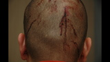 Evidence Photos: Bloodied George Zimmerman,… - (25/25)