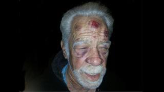 Women arrested after Apopka man, 74, beaten with cutting board